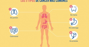 En Paraguay, el cáncer constituye la segunda causa de muerte y representa un porcentaje importante del total de fallecimientos por año.
