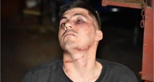 Juan Manuel Gavilán Riveros muestra las heridas que le dejaron en el rostro los efectivos policiales.