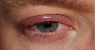 Esta inflamación hace más visibles los vasos sanguíneos, lo que le da al ojo un color rosado o rojizo.