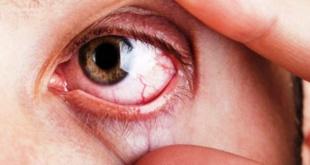 El Glaucoma es responsable de cerca del 30% de los casos de ceguera en el país. Se estima que lo padecen unas 300.000 personas en nuestra nación, quitando calidad de vida a las personas.
