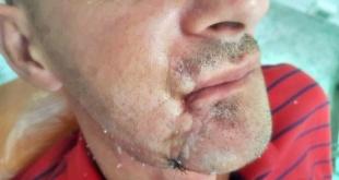 El beneficiario del implante de mandíbula, utilizando la tecnología 3D.